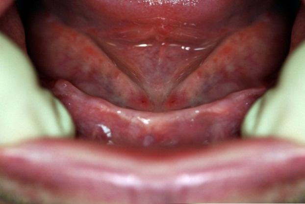 Вид нижней челюсти
