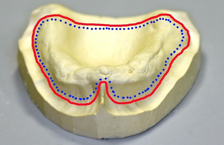 Границы протеза