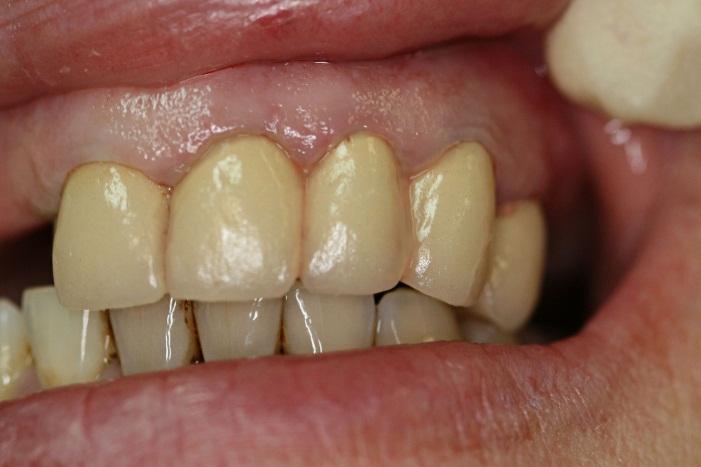 Вид металлокерамических коронок в полости рта.