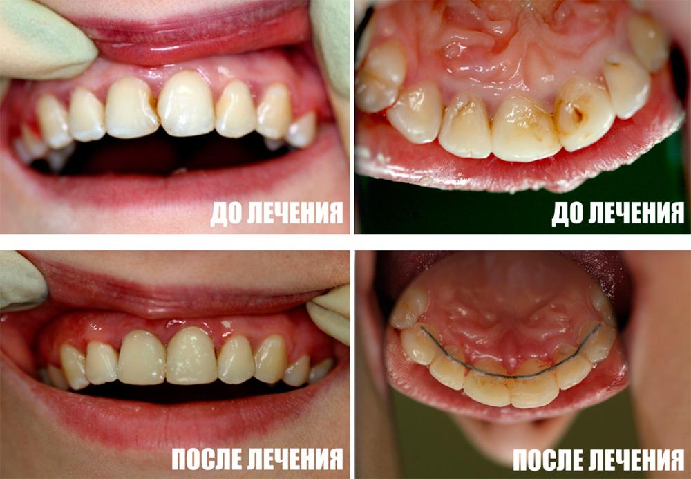 Реставрация 1.1, 2.1 зубов