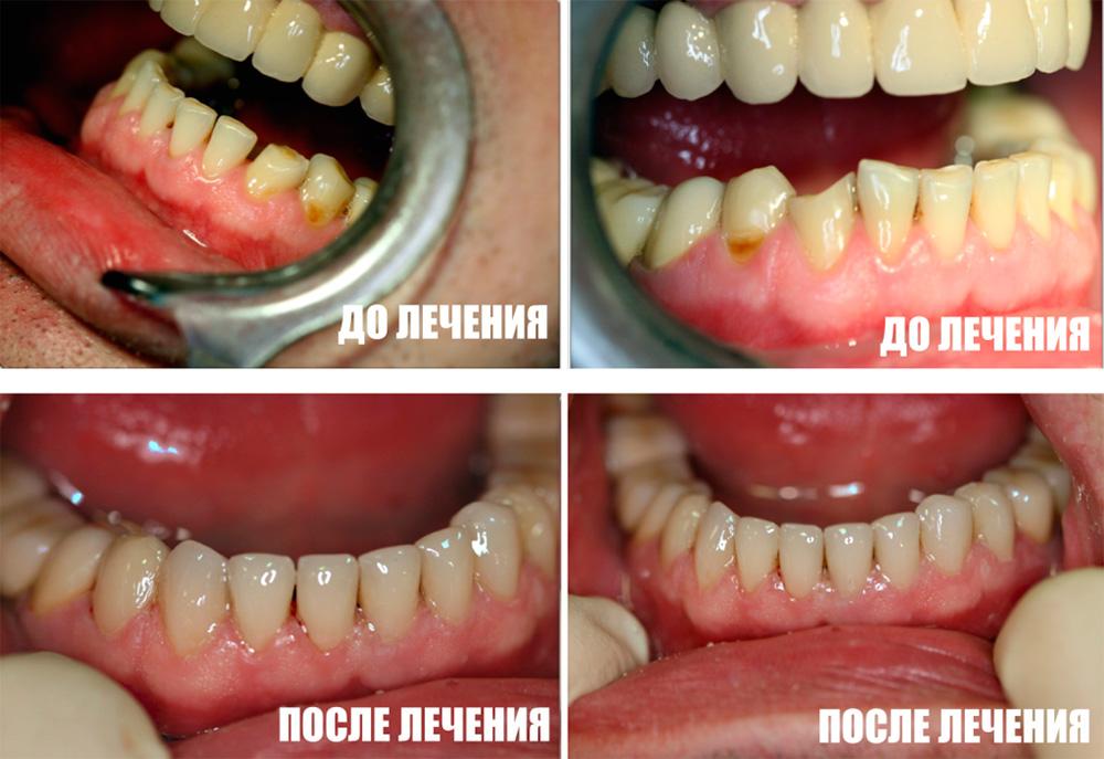 Реставрация фронтальной группы зубов нижней челюсти